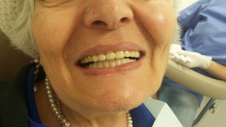full mouth reconstruction dentist rego park queens