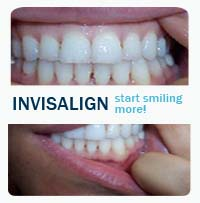 invisalign dentist rego park queens