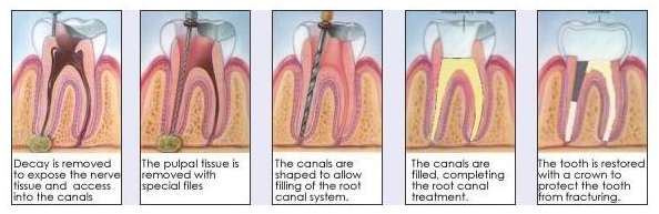 root canal dentist img