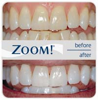 zoom teeth whitening img